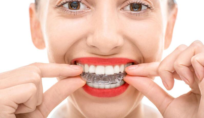 Benefits of Having Straight Aligned Teeth