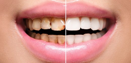 Why Do You Need To Get Teeth Whitening At A Dentist Melbourne?