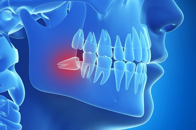 When Can You Eat Normal Food After Wisdom Teeth?