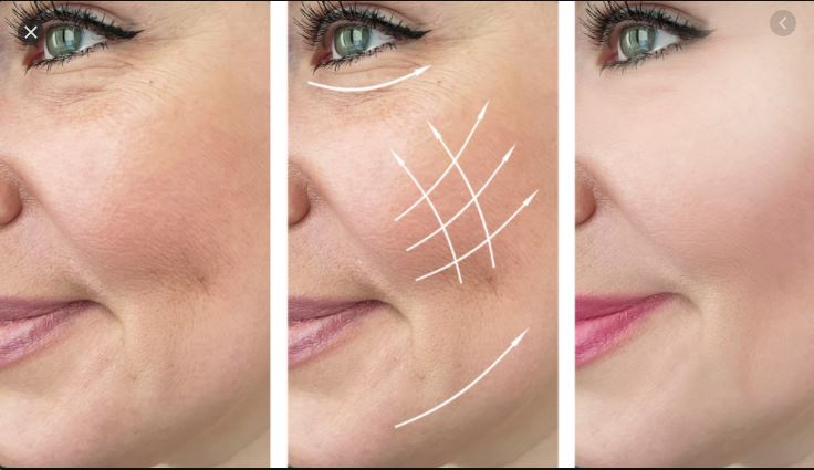 A New and fast Laser Treatment for Firmer, Younger-Looking Skin